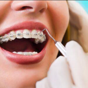 Instalacion completa del mejor brackets de Ortodoncia